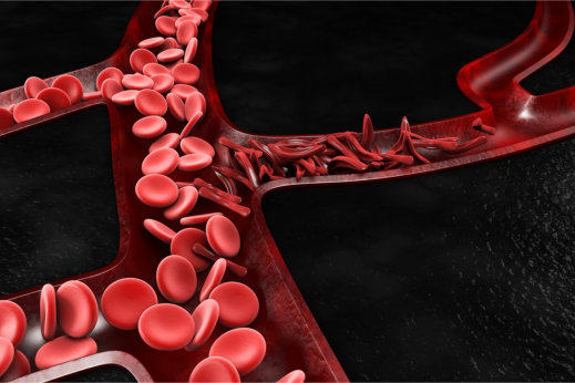 What Do You Know About Sickle Cell Disease?